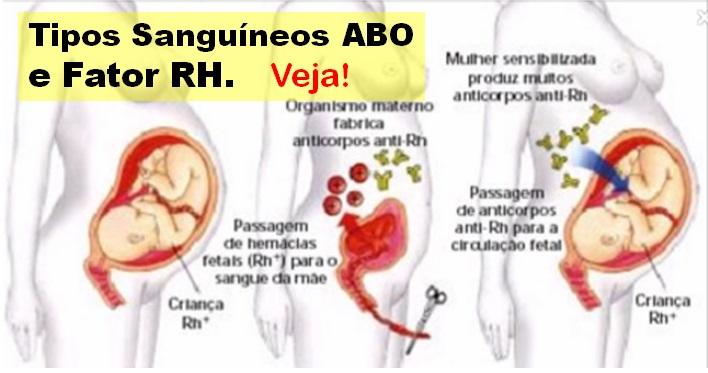 Biologia revis o de gen tica fatores sangu neos rh e mn for Tipos de viveros pdf