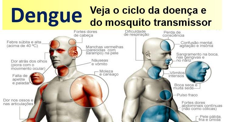 Tudo sobre a Dengue. Confira aula gratuita.