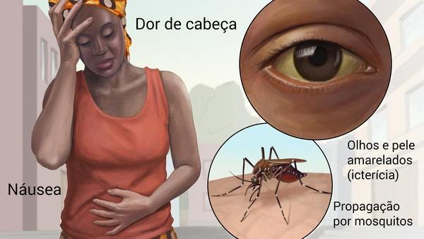 sintomas da febre amarela