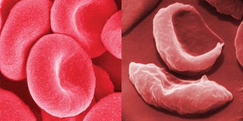 Glóbulos vermelhos - sais minerais