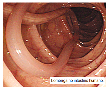 Como aprender se os parasitas são obesos